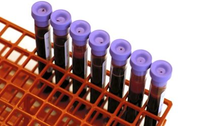 Blood samples for lab work