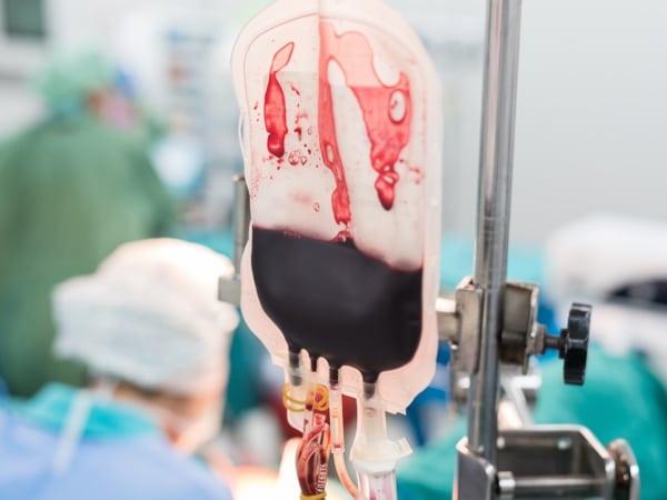 PRBC in surgery
