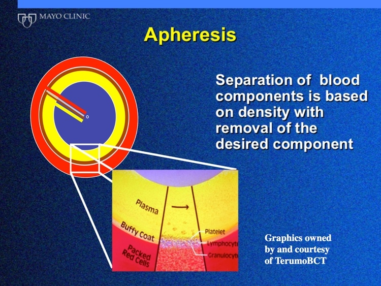 Winters Slide 2 - Separation of blood by apheresis