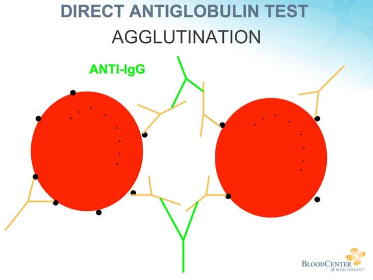 DAT procedure 4 - Anti-human globulin agglutinates coated RBCs