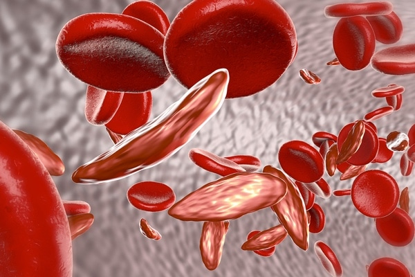030: Antibodies in Sickle Cell with Eric Gehrie